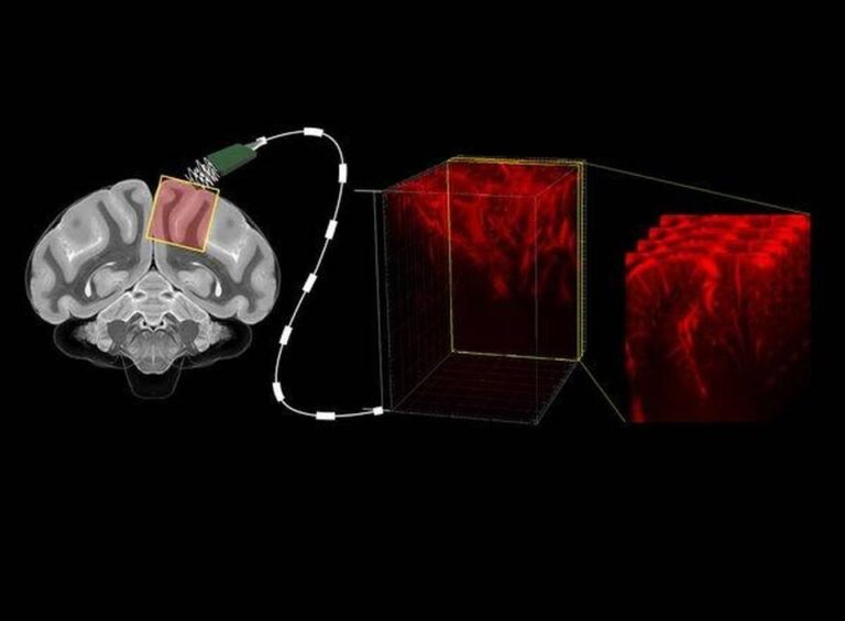 Best from science journals: Reading minds with ultrasound
